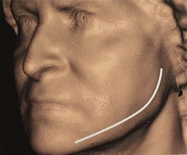 Face Oval Restorer, el tratamiento que estabasesperando.